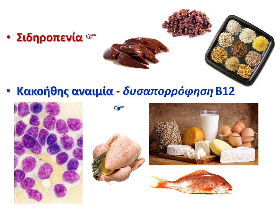 Σιδηροπενία  Κακοήθης αναιμία - δυσαπορρόφηση B12 