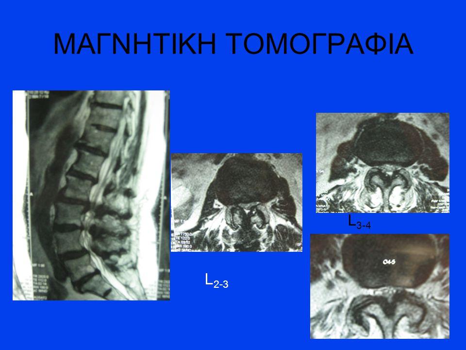 ΜΑΓΝΗΤΙΚΗ ΤΟΜΟΓΡΑΦΙΑ L3-4 L2-3