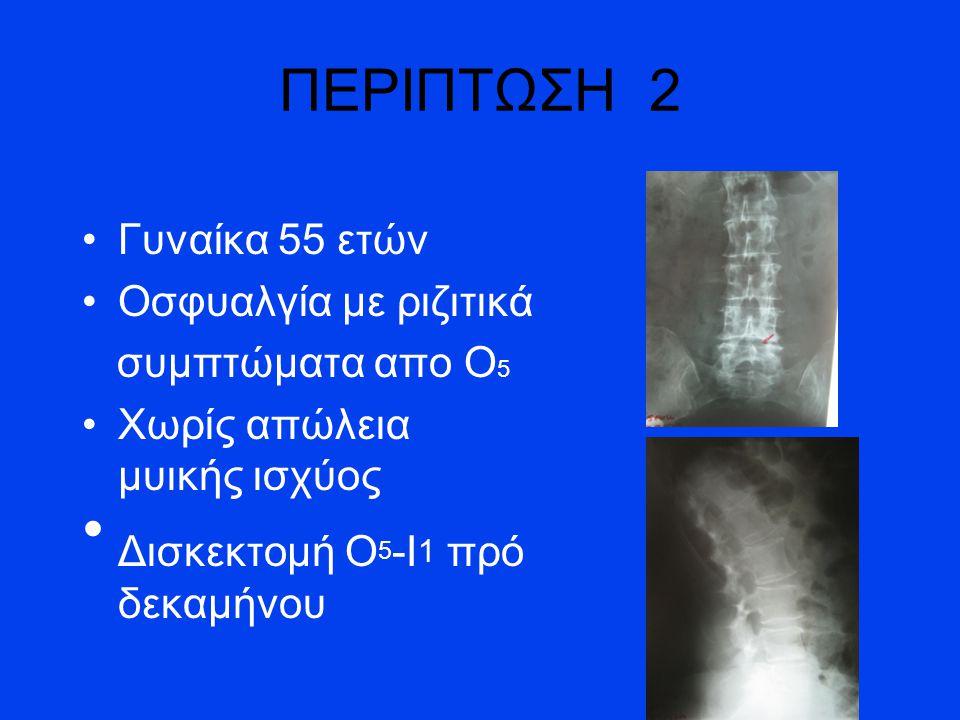 Δισκεκτομή Ο5-Ι1 πρό δεκαμήνου
