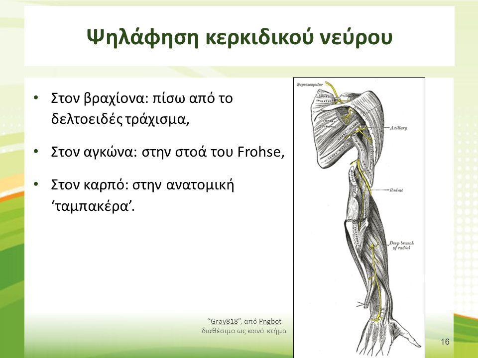 Ψηλάφηση ισχιακού νεύρου