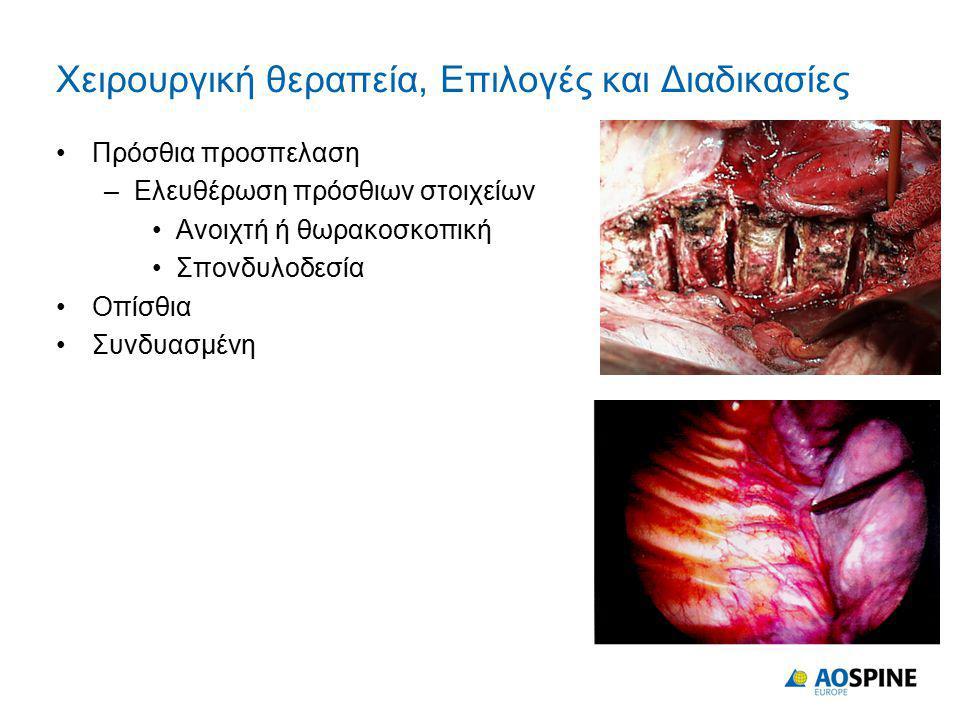 Χειρουργική θεραπεία, Επιλογές και Διαδικασίες
