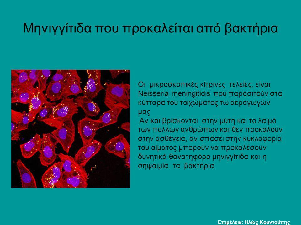 Μηνιγγίτιδα που προκαλείται από βακτήρια