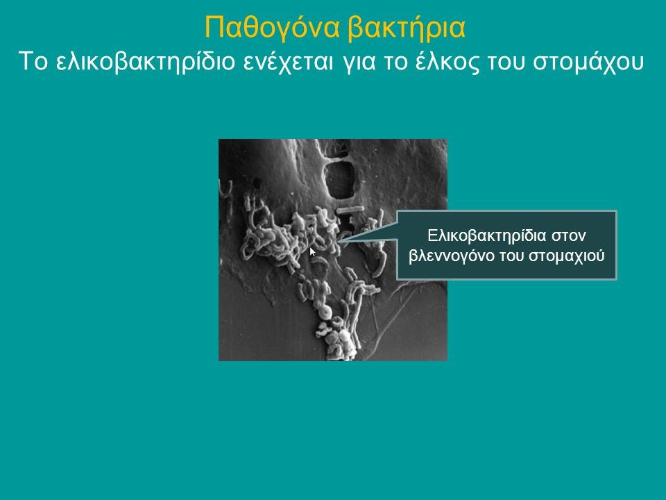 Παθογόνα βακτήρια Το ελικοβακτηρίδιο ενέχεται για το έλκος του στομάχου.