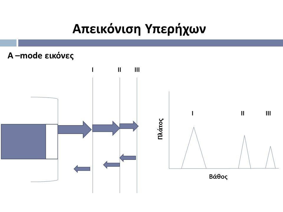 Απεικόνιση Υπερήχων Α –mode εικόνες Ι ΙΙ ΙΙΙ Πλάτος Βάθος