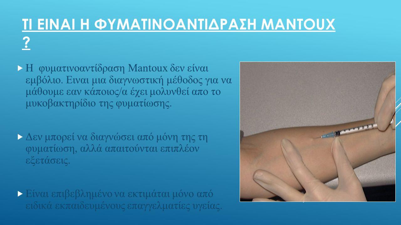 Τι ειναι η φυματινοαντιδραςη Μantoux