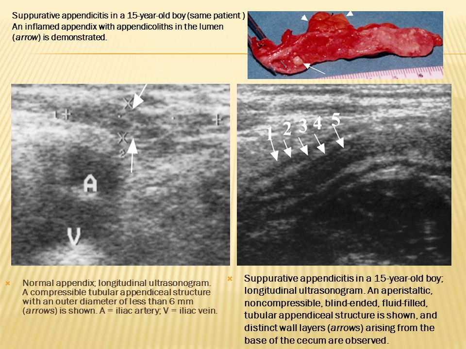 Suppurative appendicitis in a 15-year-old boy (same patient )