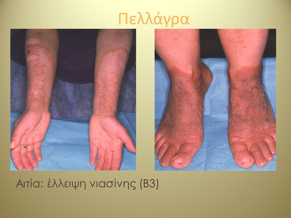 Πελλάγρα Αιτία: έλλειψη νιασίνης (Β3)
