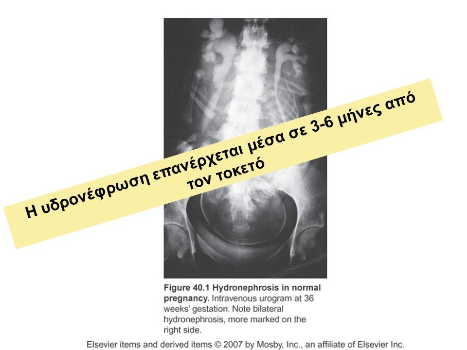 Η υδρονέφρωση επανέρχεται μέσα σε 3-6 μήνες από τον τοκετό