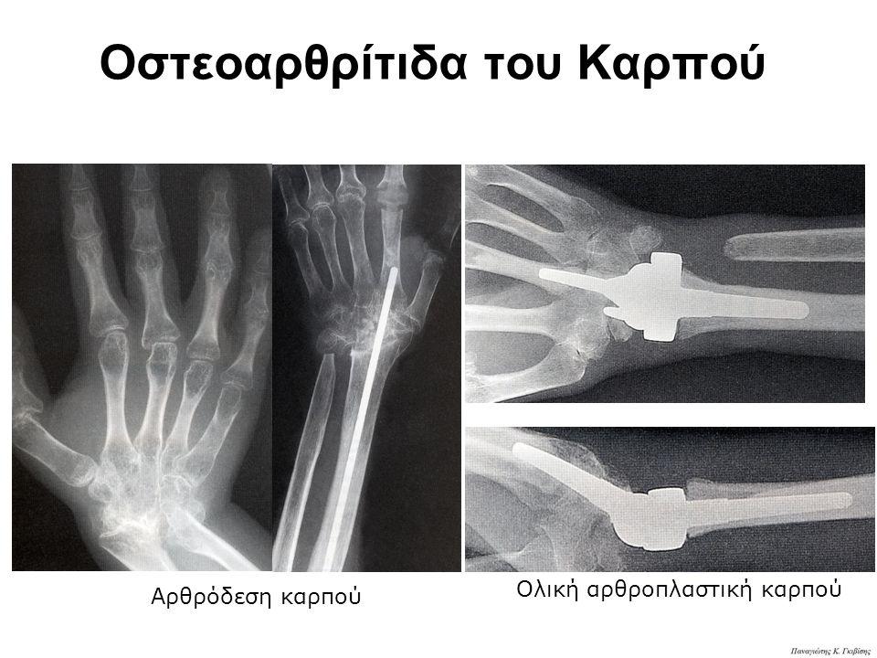 Οστεοαρθρίτιδα του Καρπού
