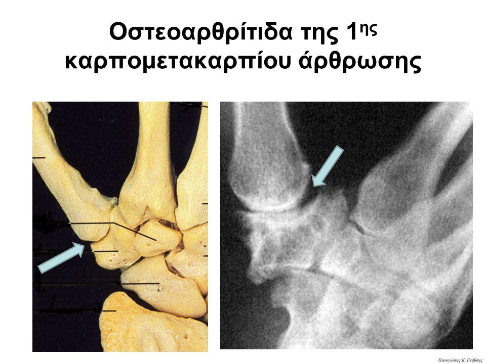 Οστεοαρθρίτιδα της 1ης καρπομετακαρπίου άρθρωσης
