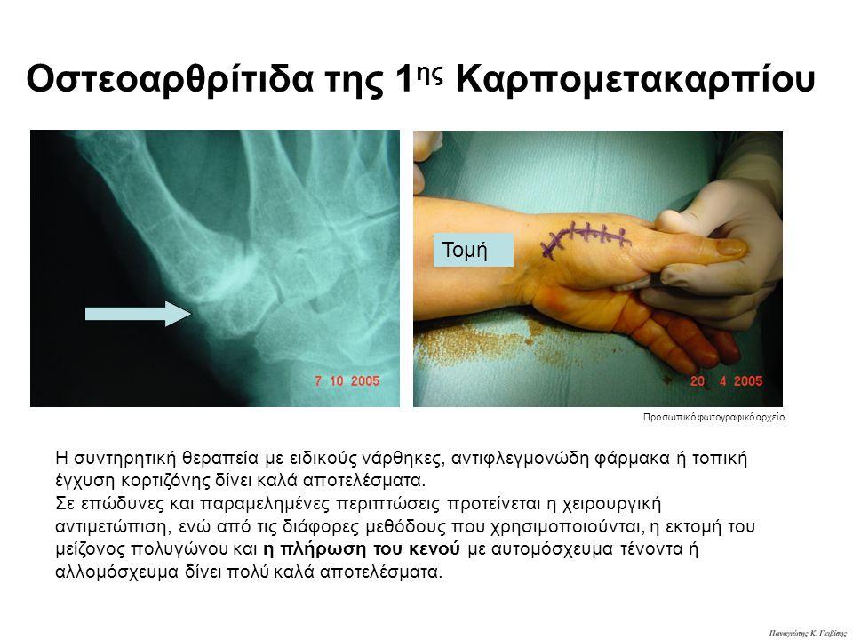 Οστεοαρθρίτιδα της 1ης Καρπομετακαρπίου