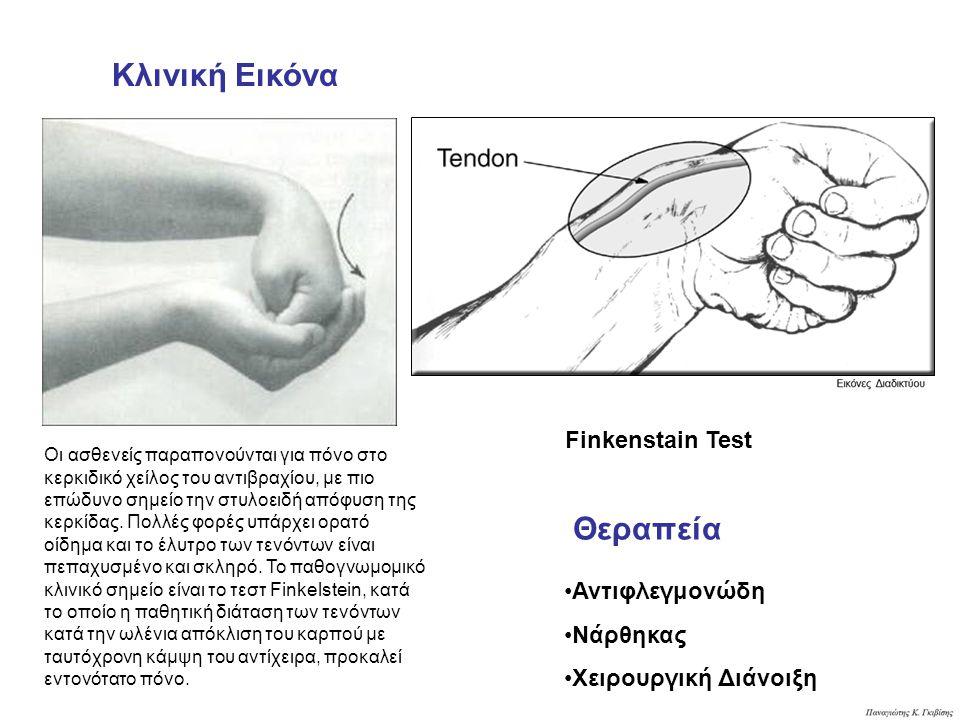 Κλινική Εικόνα Θεραπεία Finkenstain Test Αντιφλεγμονώδη Νάρθηκας