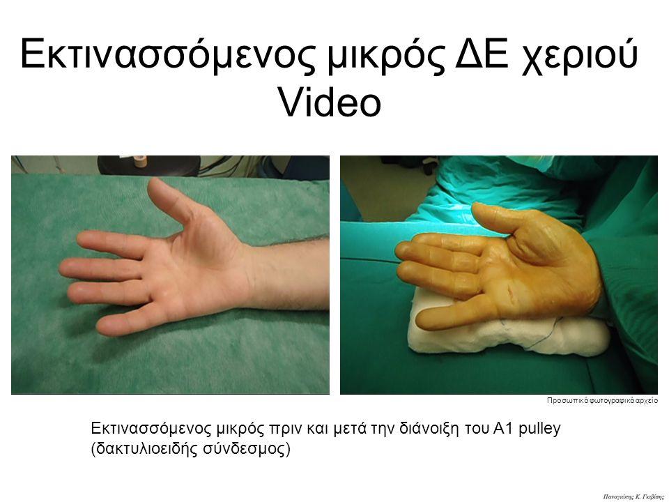 Εκτινασσόμενος μικρός ΔΕ χεριού Video