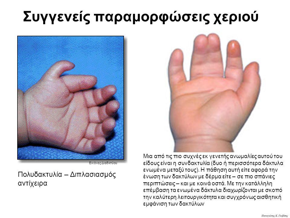 Συγγενείς παραμορφώσεις χεριού