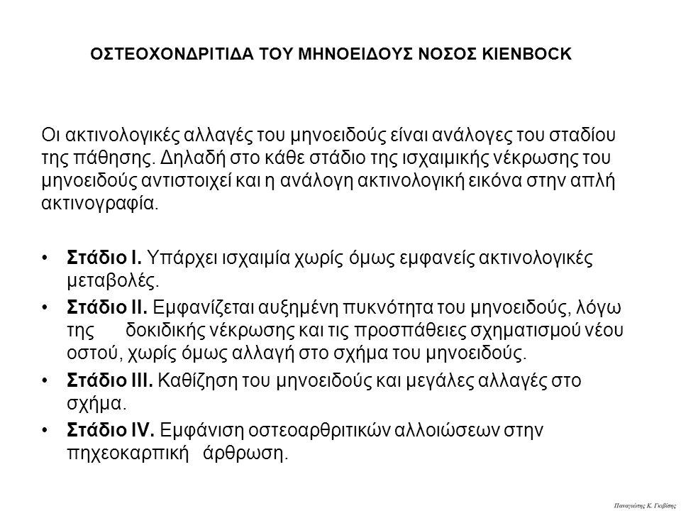 ΟΣΤΕΟΧΟΝΔΡΙΤΙΔΑ ΤΟΥ ΜΗΝΟΕΙΔΟΥΣ ΝΟΣΟΣ KIENBOCK