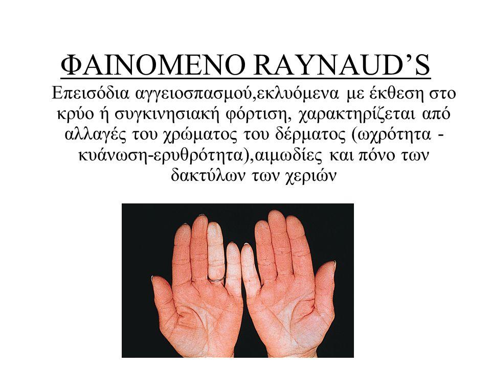 ΦΑΙΝΟΜΕΝΟ RAYNAUD'S