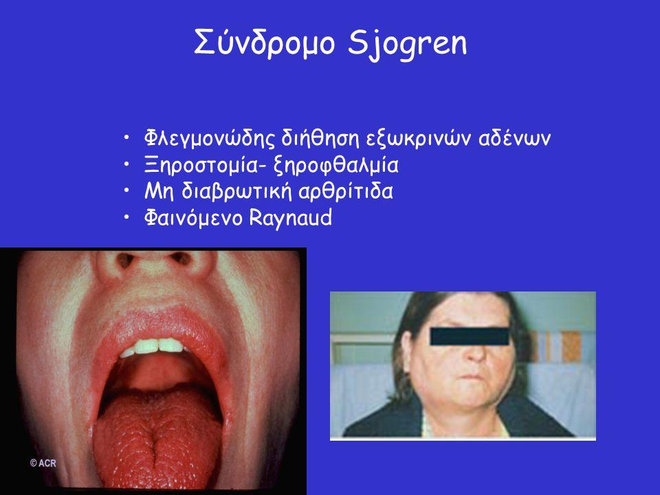 Σύνδρομο Sjogren Φλεγμονώδης διήθηση εξωκρινών αδένων