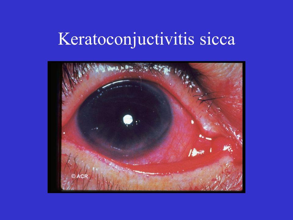 Keratoconjuctivitis sicca