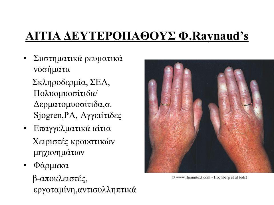 ΑΙΤΙΑ ΔΕΥΤΕΡΟΠΑΘΟΥΣ Φ.Raynaud's