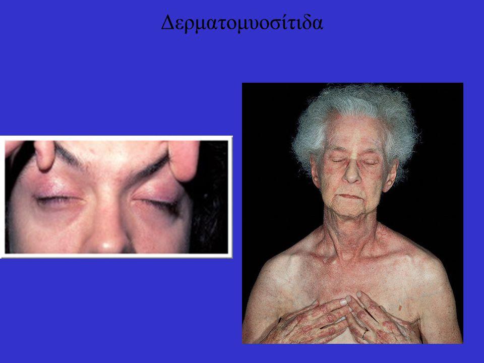 Δερματομυοσίτιδα