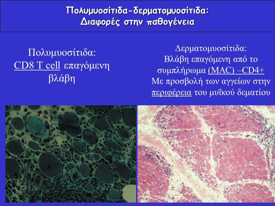 Πολυμυοσίτιδα-δερματομυοσίτιδα: Διαφορές στην παθογένεια