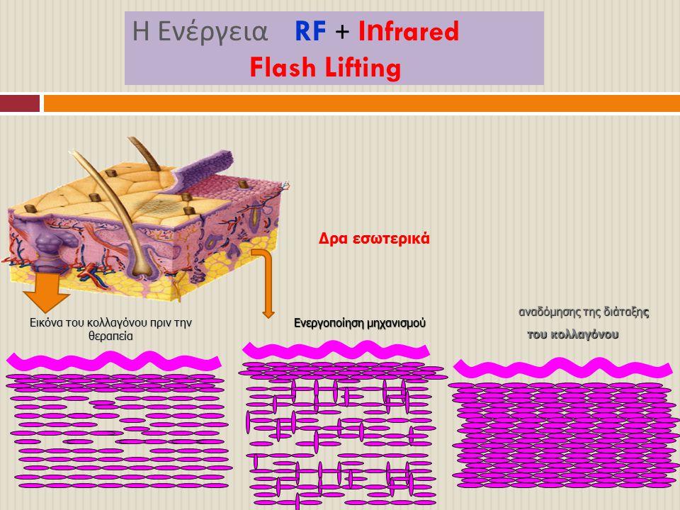 Η Ενέργεια RF + Infrared Flash Lifting