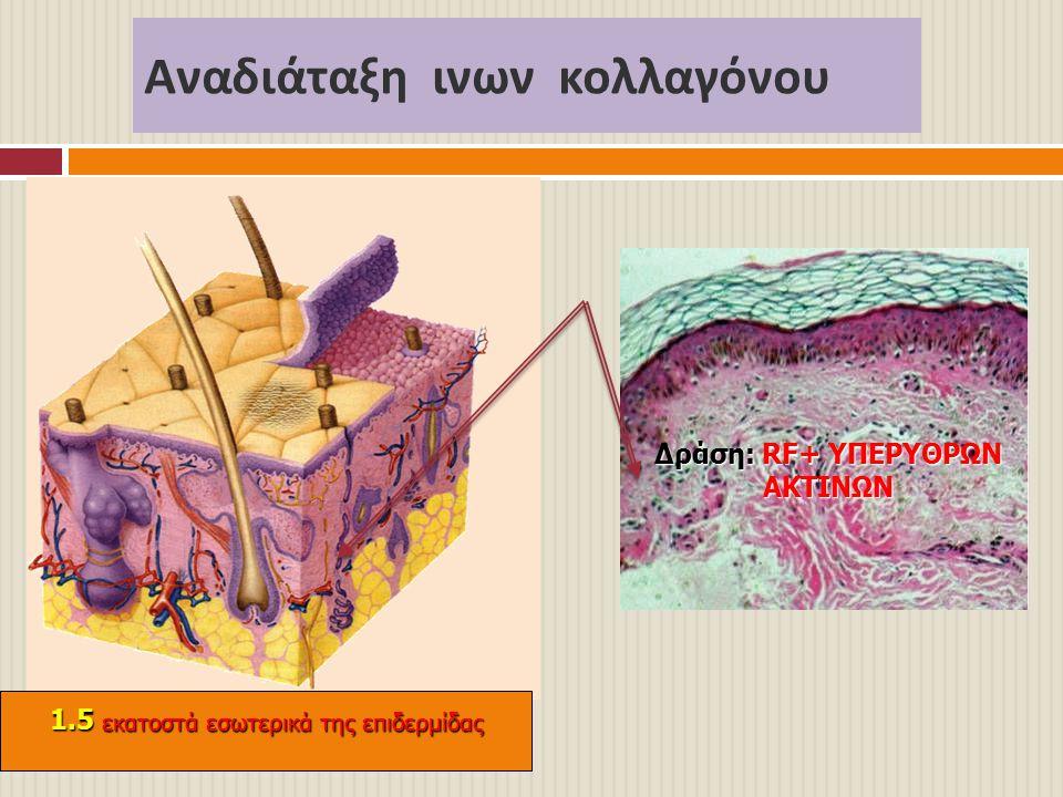 Αναδιάταξη ινων κολλαγόνου