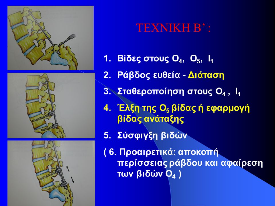 ΤΕΧΝΙΚΗ Β' : Βίδες στους Ο4, Ο5, Ι1 Ράβδος ευθεία - Διάταση
