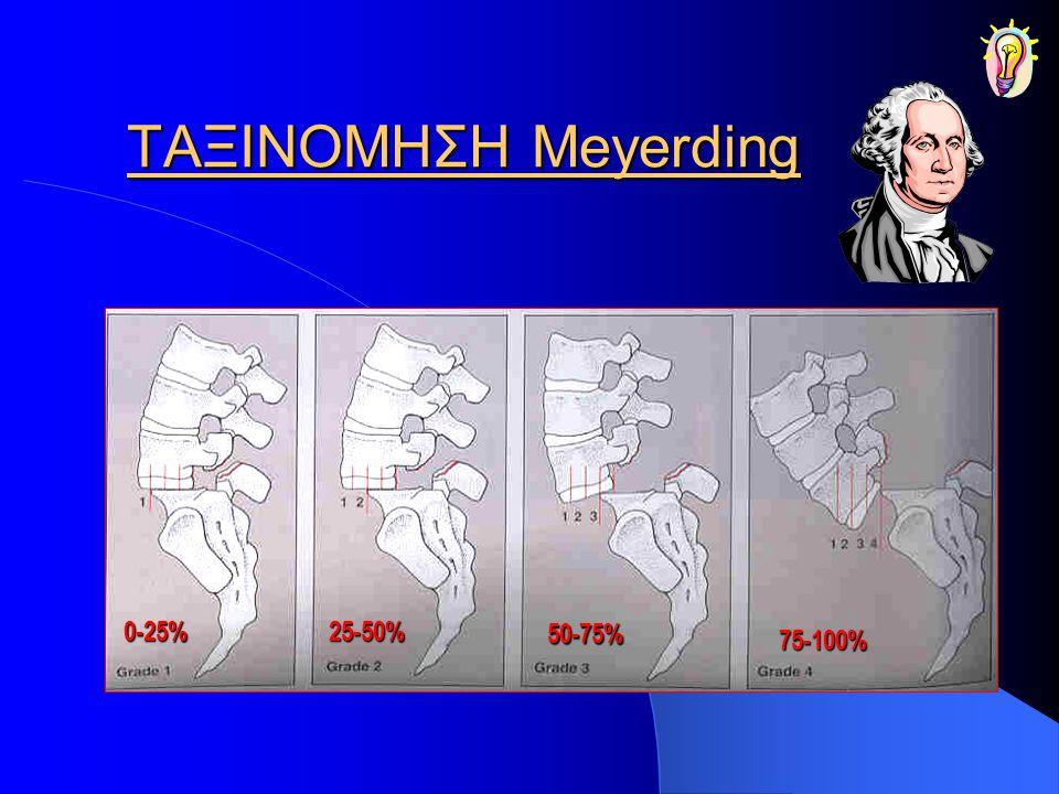 ΤΑΞΙΝΟΜΗΣΗ Meyerding 0-25% 25-50% 50-75% 75-100%