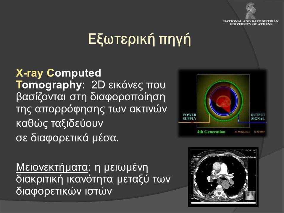 Εξωτερική πηγή Χ-ray Computed Tomography: 2D εικόνες που βασίζονται στη διαφοροποίηση της απορρόφησης των ακτινών.