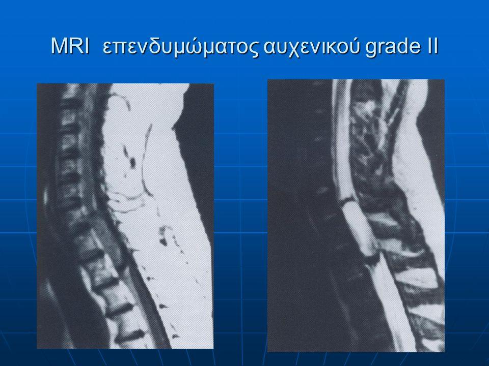 MRI επενδυμώματος αυχενικού grade II
