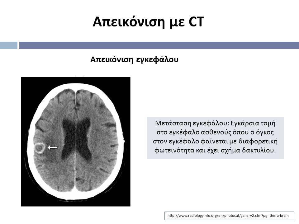 Απεικόνιση με CT Απεικόνιση εγκεφάλου
