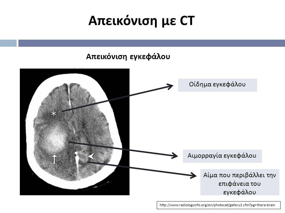 Αίμα που περιβάλλει την επιφάνεια του εγκεφάλου