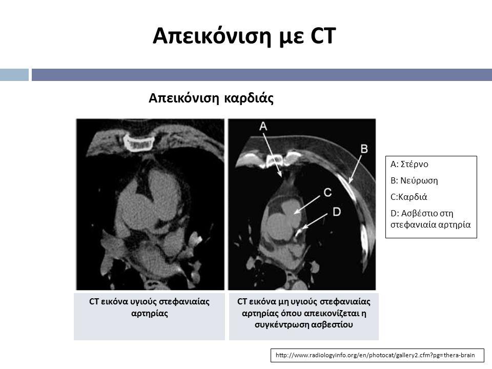 CT εικόνα υγιούς στεφανιαίας αρτηρίας