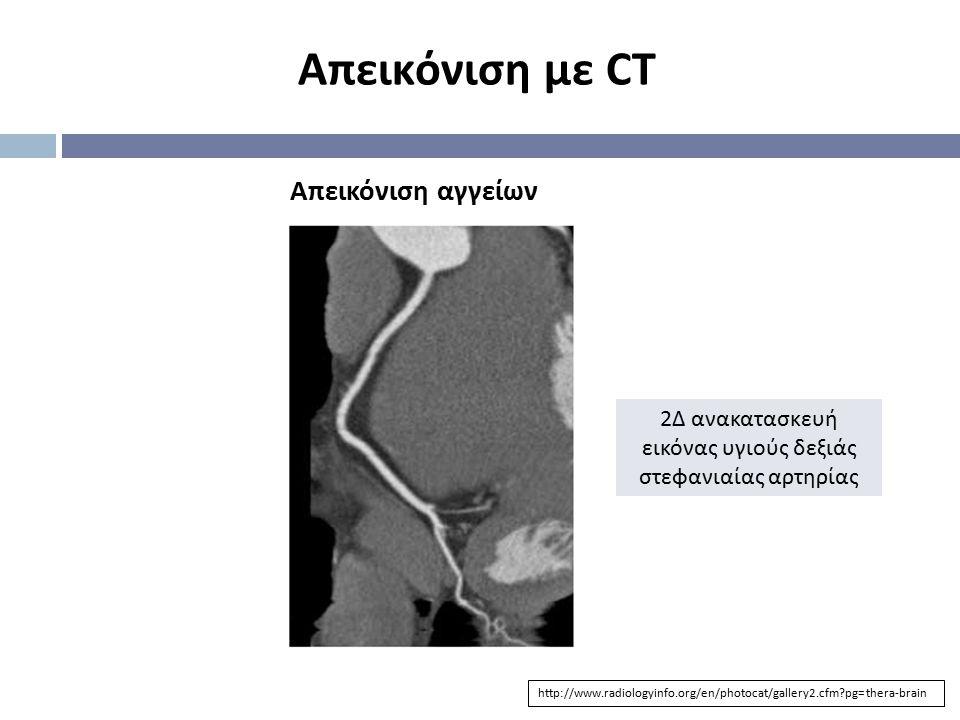 2Δ ανακατασκευή εικόνας υγιούς δεξιάς στεφανιαίας αρτηρίας