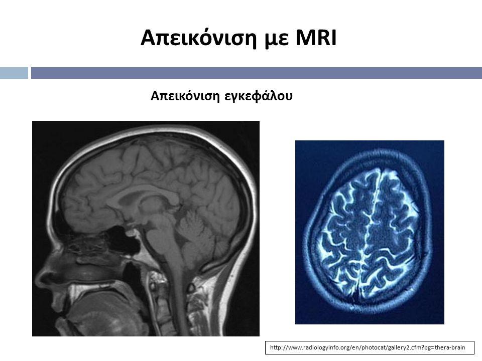 Απεικόνιση με MRI Απεικόνιση εγκεφάλου