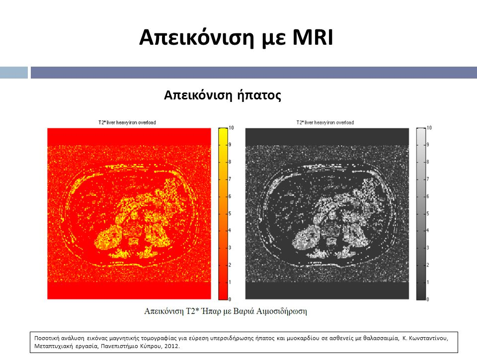 Απεικόνιση με MRI Απεικόνιση ήπατος