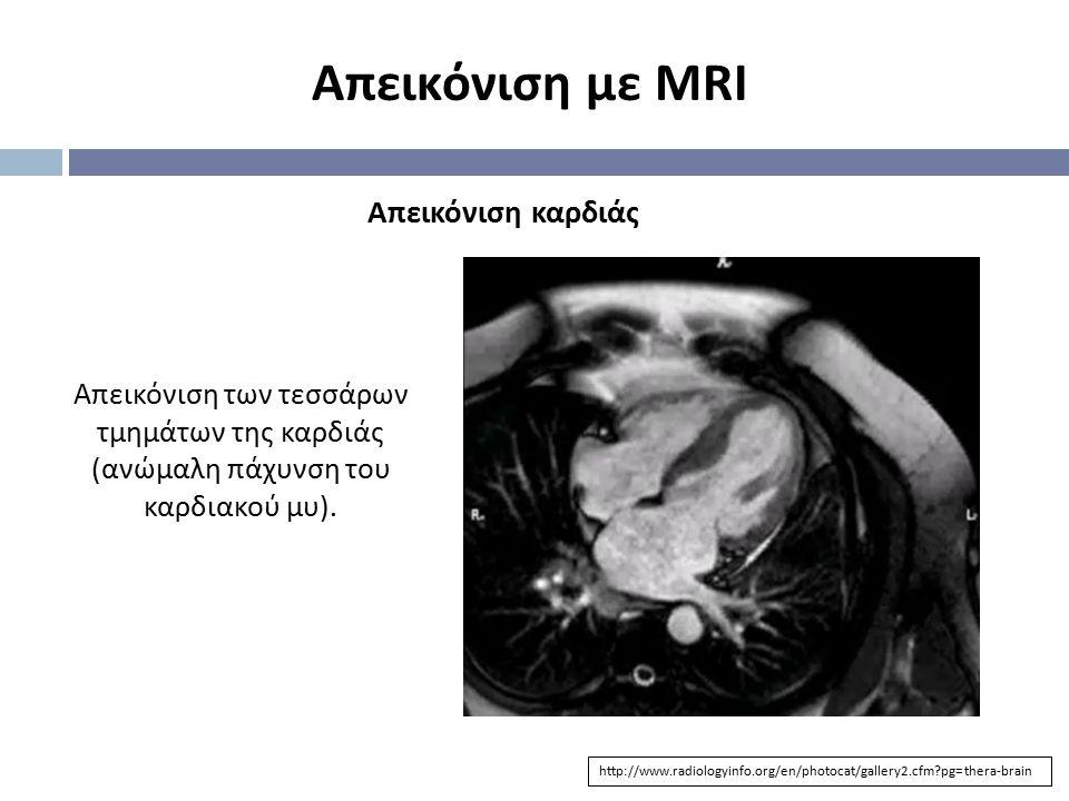 Απεικόνιση με MRI Απεικόνιση καρδιάς