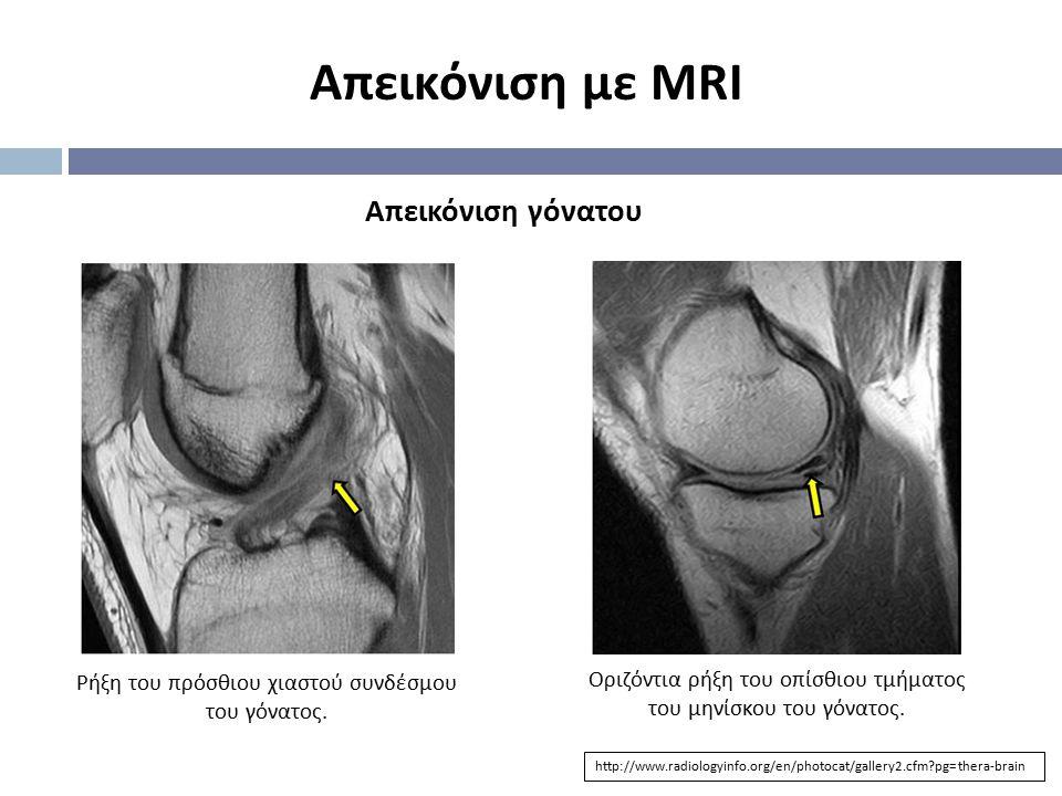 Απεικόνιση με MRI Απεικόνιση γόνατου
