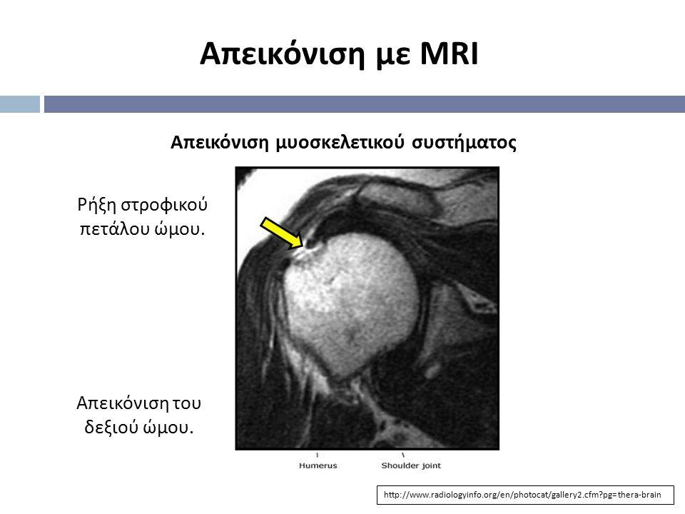 Απεικόνιση με MRI Απεικόνιση μυοσκελετικού συστήματος
