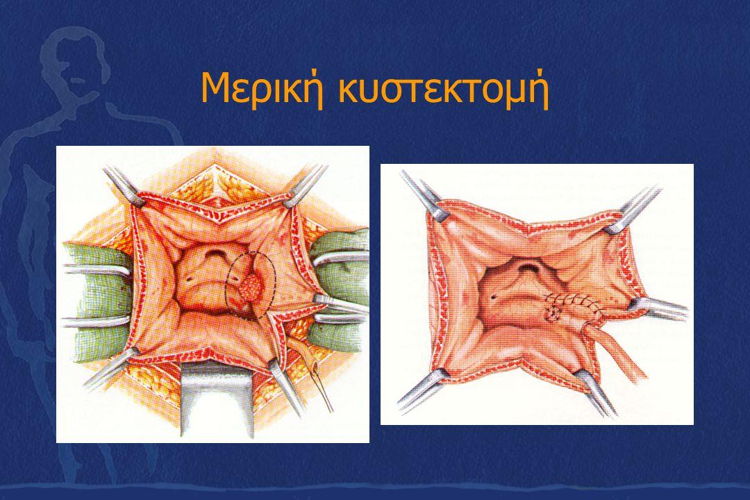 Μερική κυστεκτομή