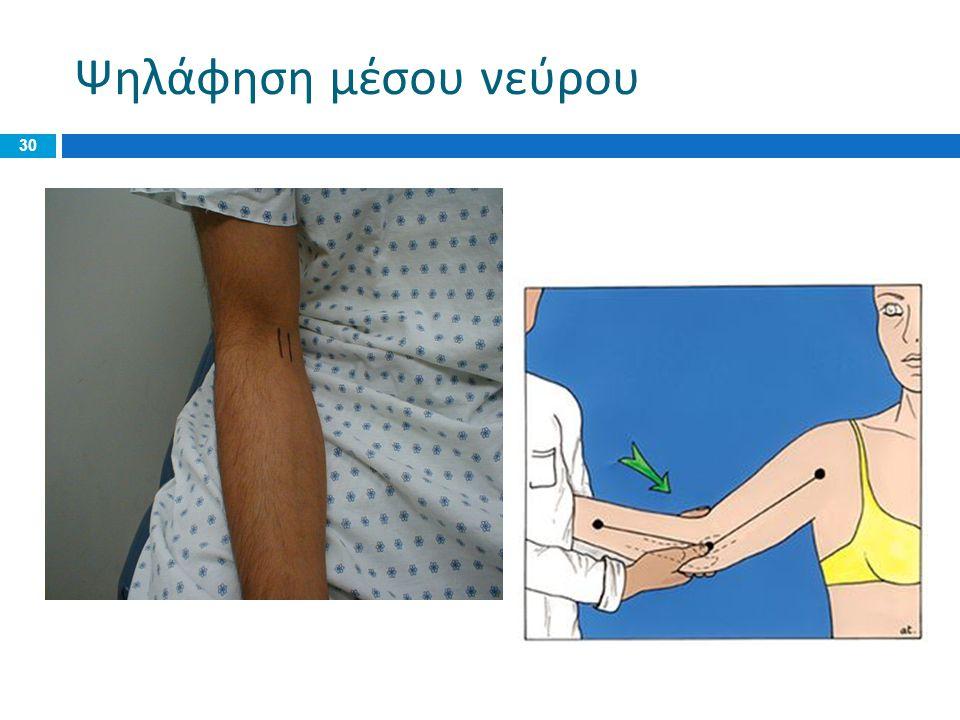 Ψηλάφηση μέσου νεύρου IF time do some nerve palpation