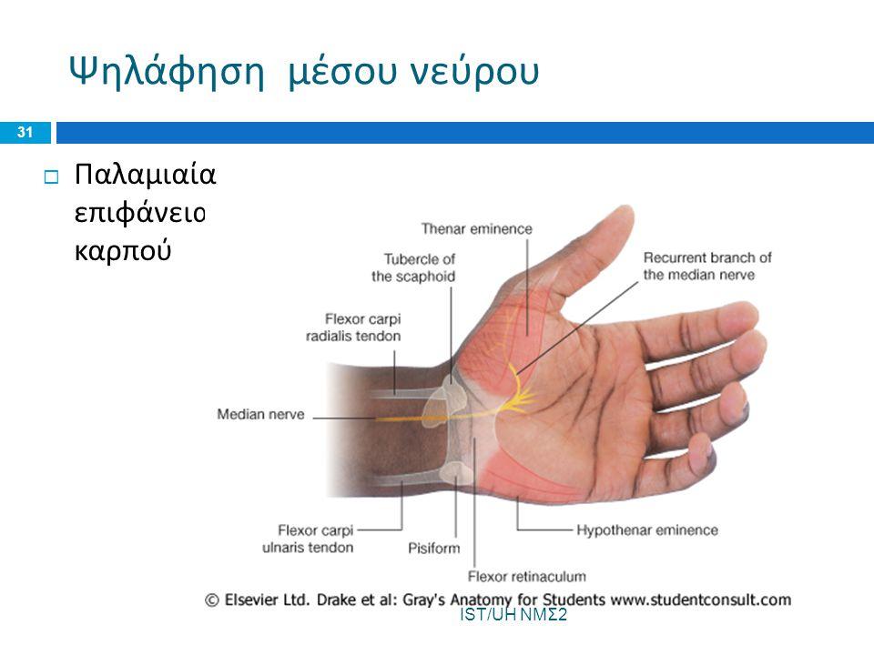 Ψηλάφηση μέσου νεύρου Παλαμιαία επιφάνεια καρπού IST/UH ΝΜΣ2