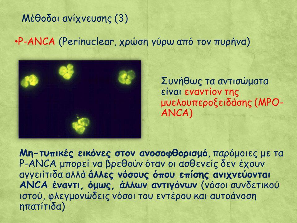 Μέθοδοι ανίχνευσης (3) P-ANCA (Perinuclear, χρώση γύρω από τον πυρήνα) Συνήθως τα αντισώματα είναι εναντίον της μυελουπεροξειδάσης (MPO-ANCA)
