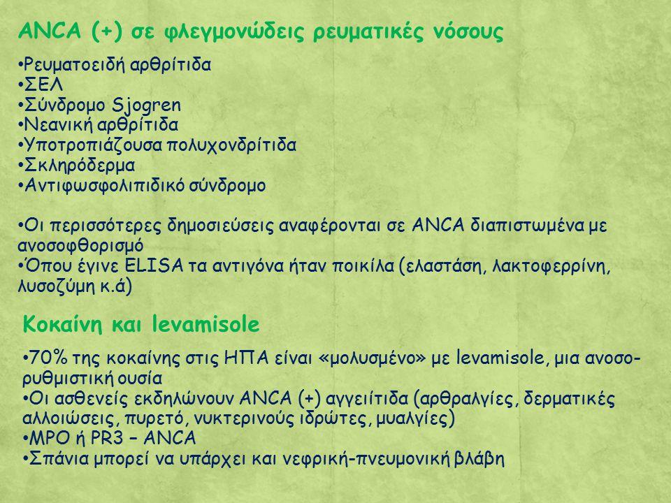 ANCA (+) σε φλεγμονώδεις ρευματικές νόσους