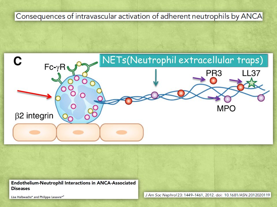NETs(Neutrophil extracellular traps)