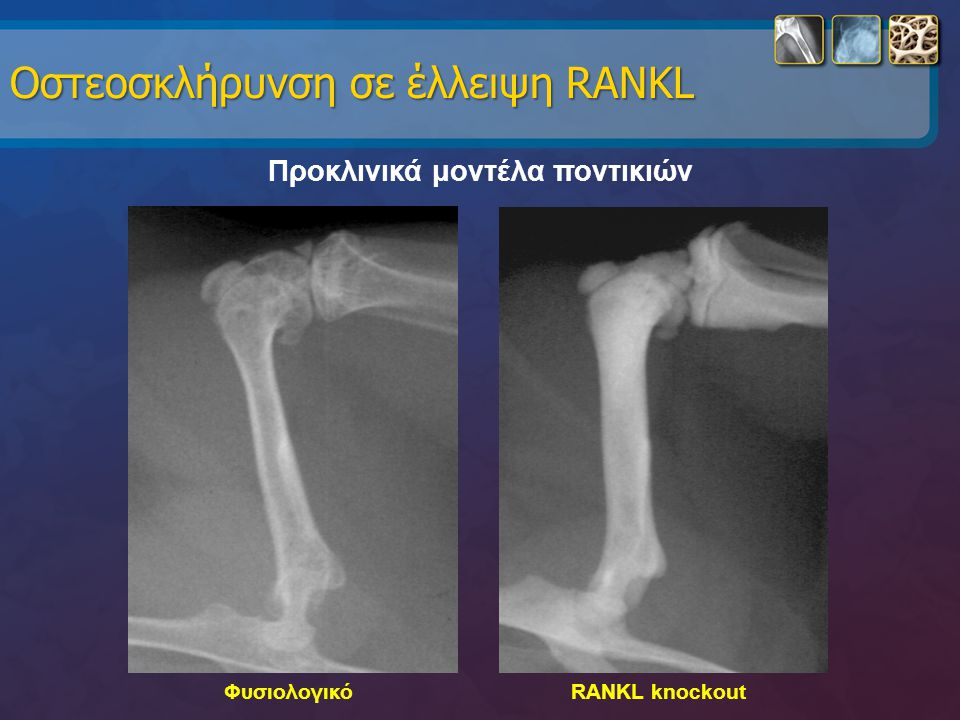 Οστεοσκλήρυνση σε έλλειψη RANKL