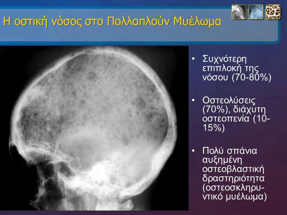 Η οστική νόσος στο Πολλαπλούν Μυέλωμα