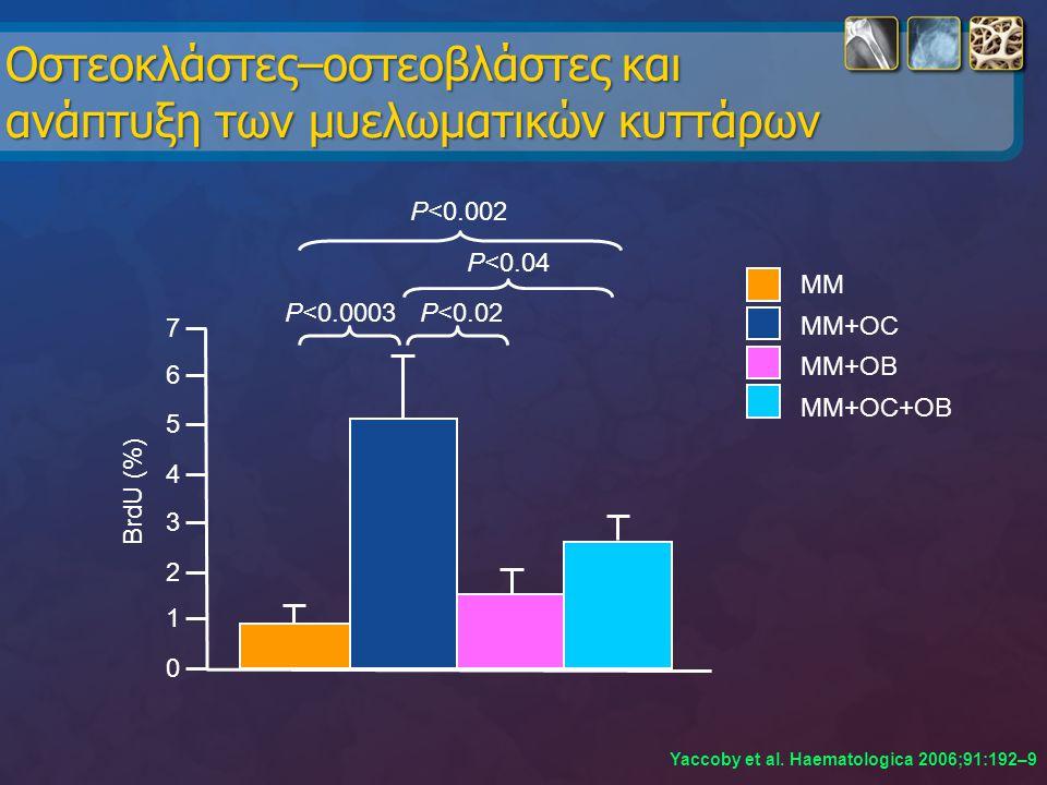 Oστεοκλάστες–οστεοβλάστες και ανάπτυξη των μυελωματικών κυττάρων