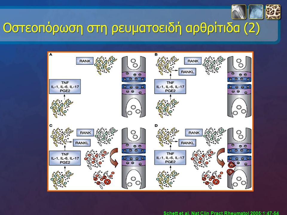 Oστεοπόρωση στη ρευματοειδή αρθρίτιδα (2)